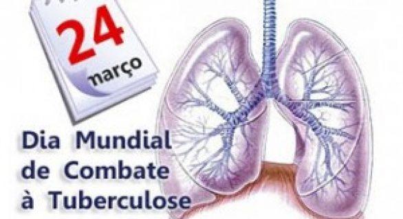 Governo anuncia implantação do teste rápido da tuberculose
