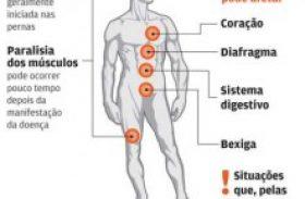 2015 registra recorde de casos da síndrome de Guillain-Barré em Alagoas