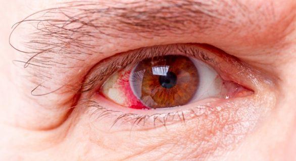 Milhares de alagoanos podem ficar sem tratamento para o Glaucoma
