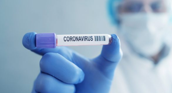 Brasil chega a 111.100 mortes confirmadas pelo novo coronavírus