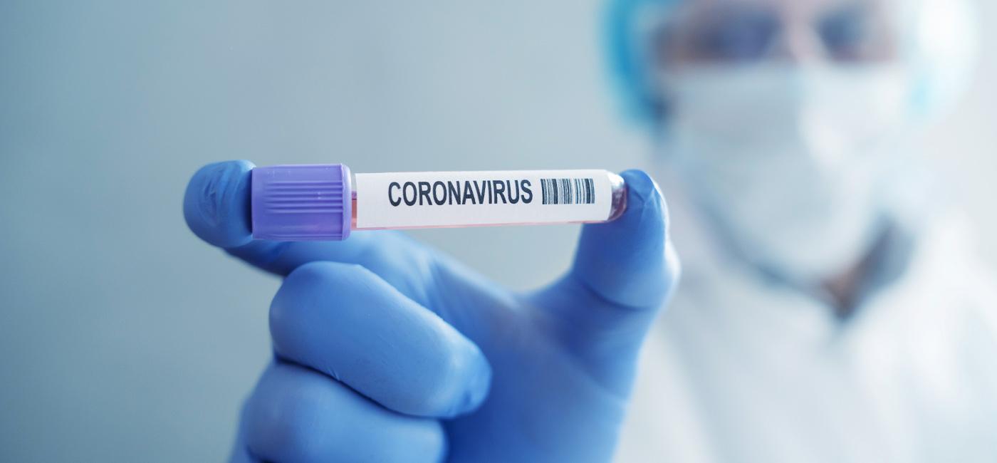 Brasil passa de 115 mil mortes causadas pelo novo coronavírus